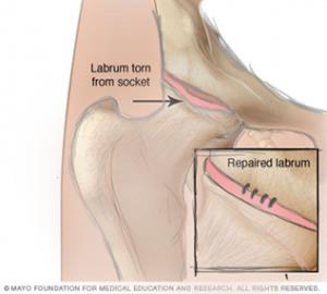 hip tear at base of labrum