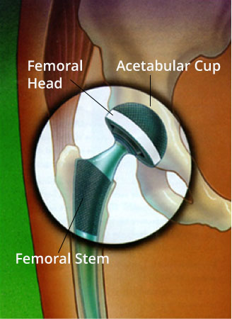 Outpatient Anterior Hip Replacement