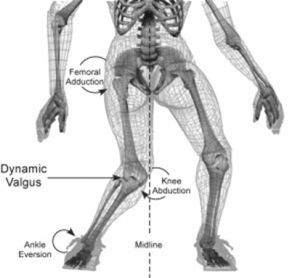 Females often twist further away from the midline of the leg than males when landing, thus creating more stress on the ACL (http://www.medbridgeeducation.com/blog/tag/acl-reconstruction/)