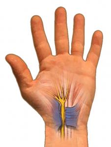 Cut transverse carpal ligament