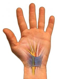 Intact transverse carpal ligament