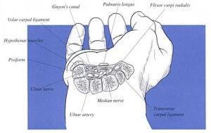 carpal tunnel in wrist