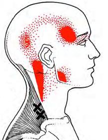 trigger points of myofacial pain